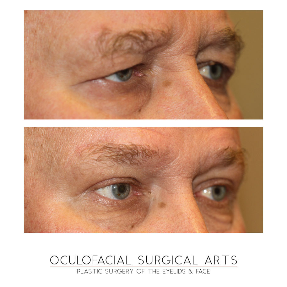 Eyelid Lift - Brow Lift