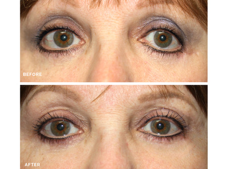 Cosmetic Eyelid Surgery Revision: Why you Should Trust your Eyelids to an Oculoplastic Surgeon