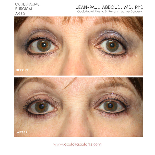 Lower Eyelid Blepharoplasty Revision & Retraction Repair