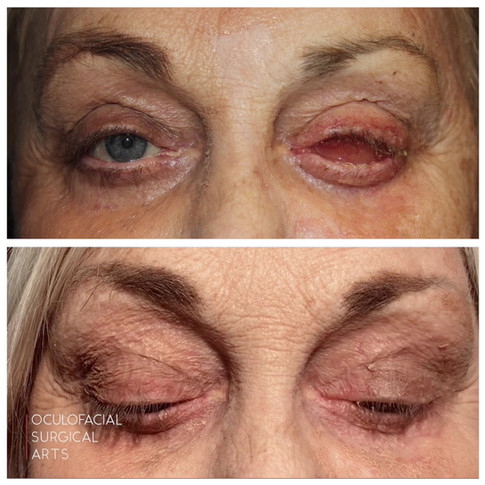 Left Eye Evisceration with Placement of an Ocular Prosthetis
