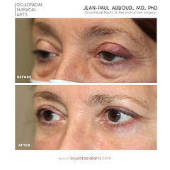 Cosmetic Canthoplasty (Almond Eye Surgery)