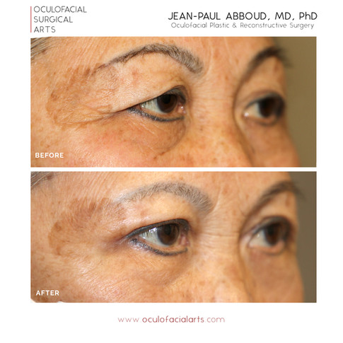 Asian Blepharoplasty and Ptosis Surgery