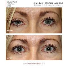 Eyelid Ptosis Surgery (Eyelid Lift)