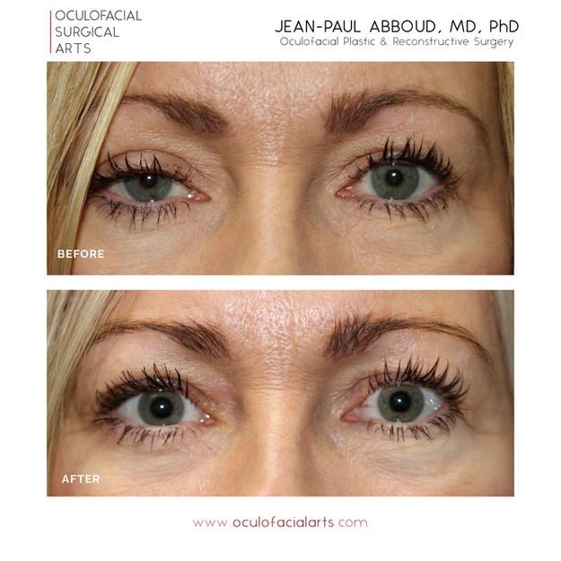 Scarless Eyelid Ptosis Repair
