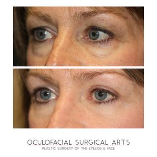 Upper & Lower Eyelid Blepharoplasty