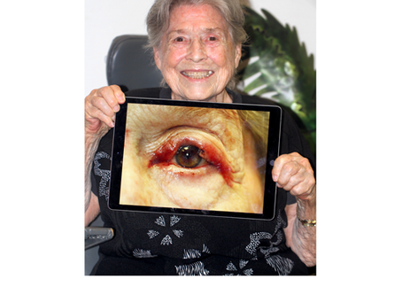 Upper Eyelid Reconstruction after Mohs Surgical Excision - A Pictorial Essay