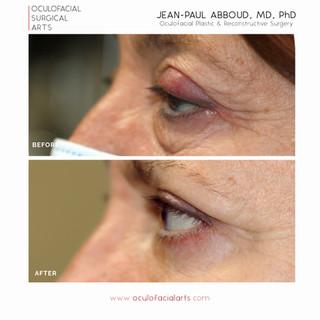 Upper & Lower Eyelid Blepharoplasty and Canthoplasty