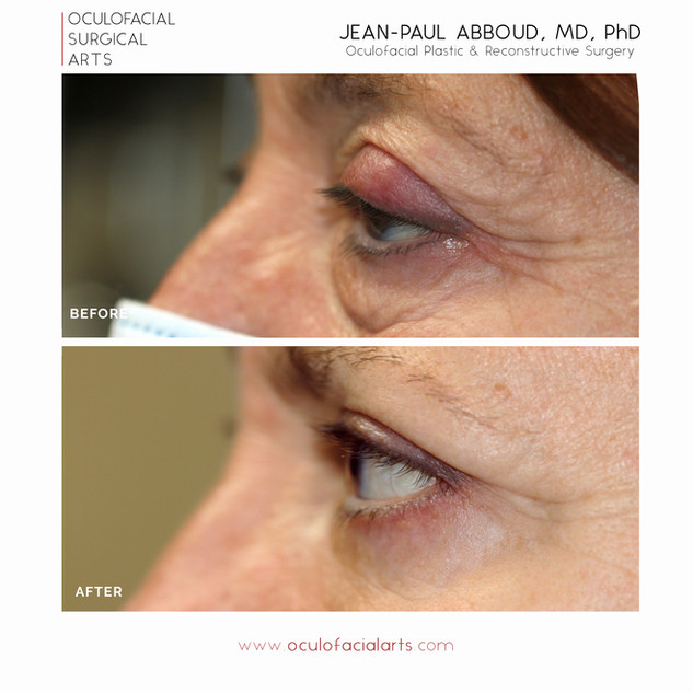 Upper Eyelid Ptosis Repair and Blepharoplasty