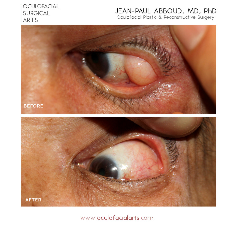 Subconjunctival Prolapse of Orbital Fat