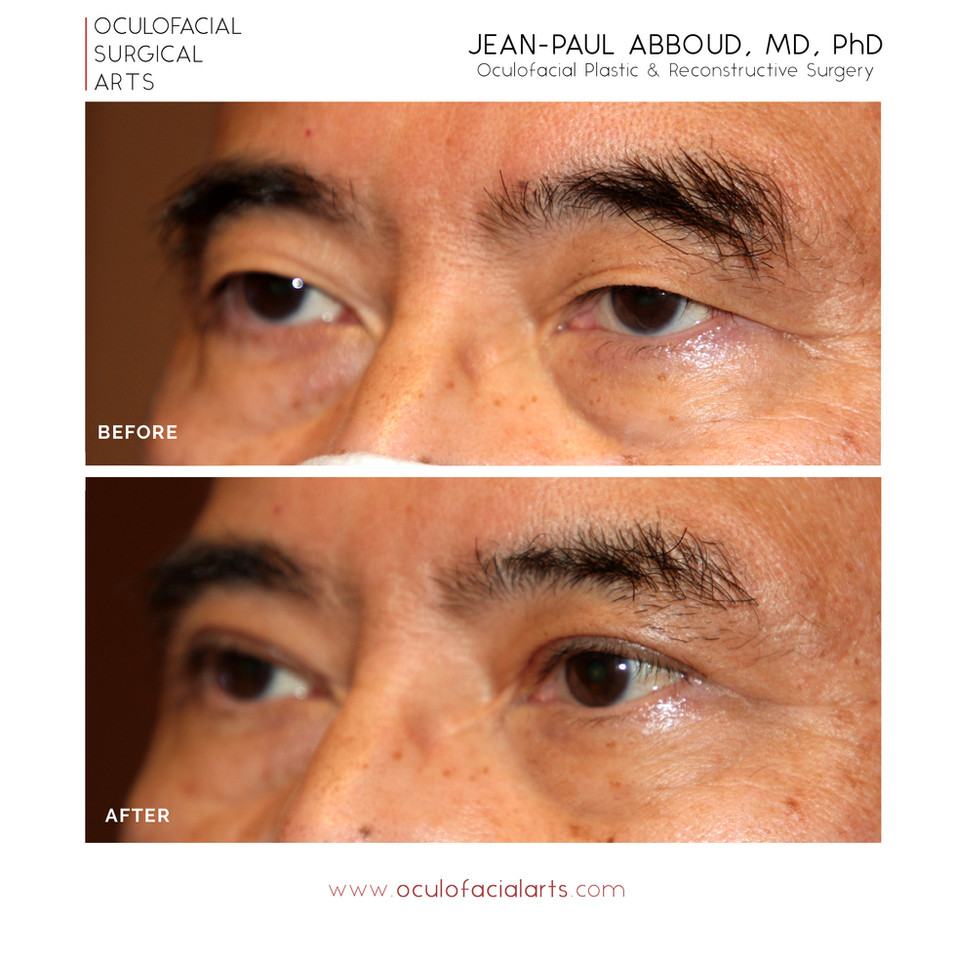 Asian Blepharoplasty