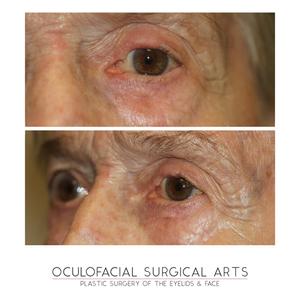 Eyelid Reconstruction after Skin Cancer