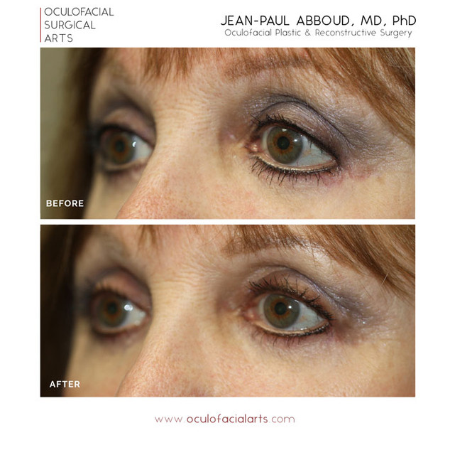 Revisional Cosmetic Lower Blepharoplasty