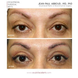 Upper Eyelid Blepharoplasty