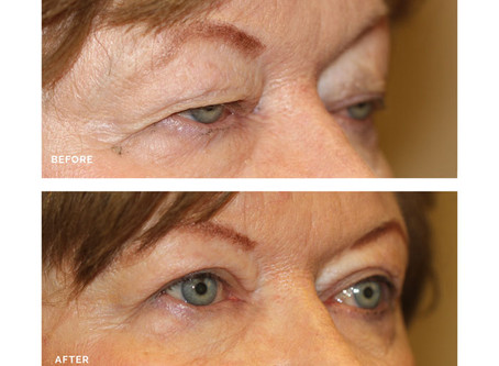 What causes the appearance of a droopy upper eyelid?