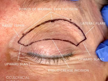 Skin Marking in Cosmetic Upper Blepharoplasty