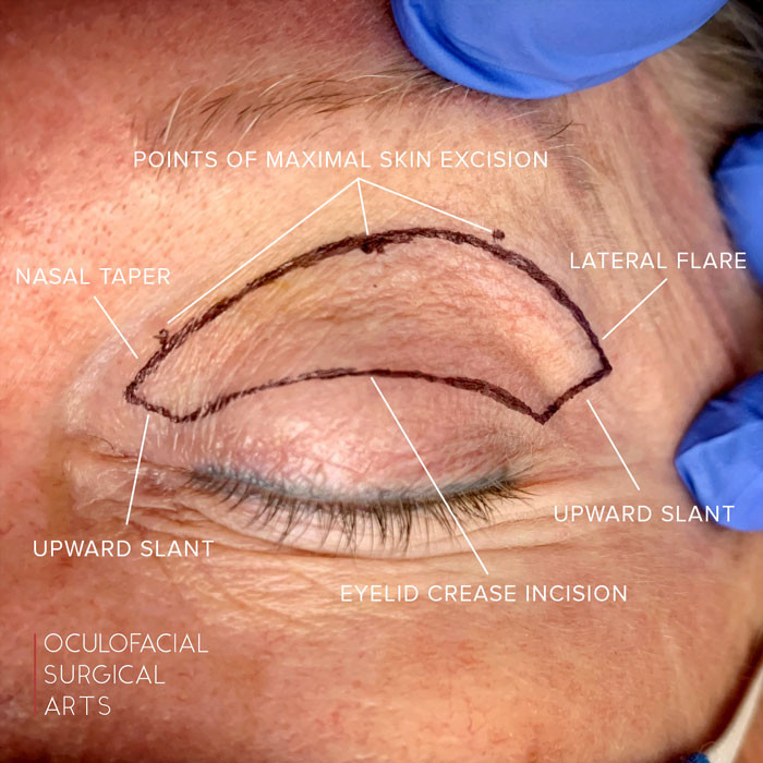Skin Marking in Cosmetic Upper Blepharoplasty