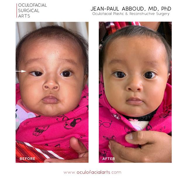 Congenital Upper Eyelid Ptosis Repair