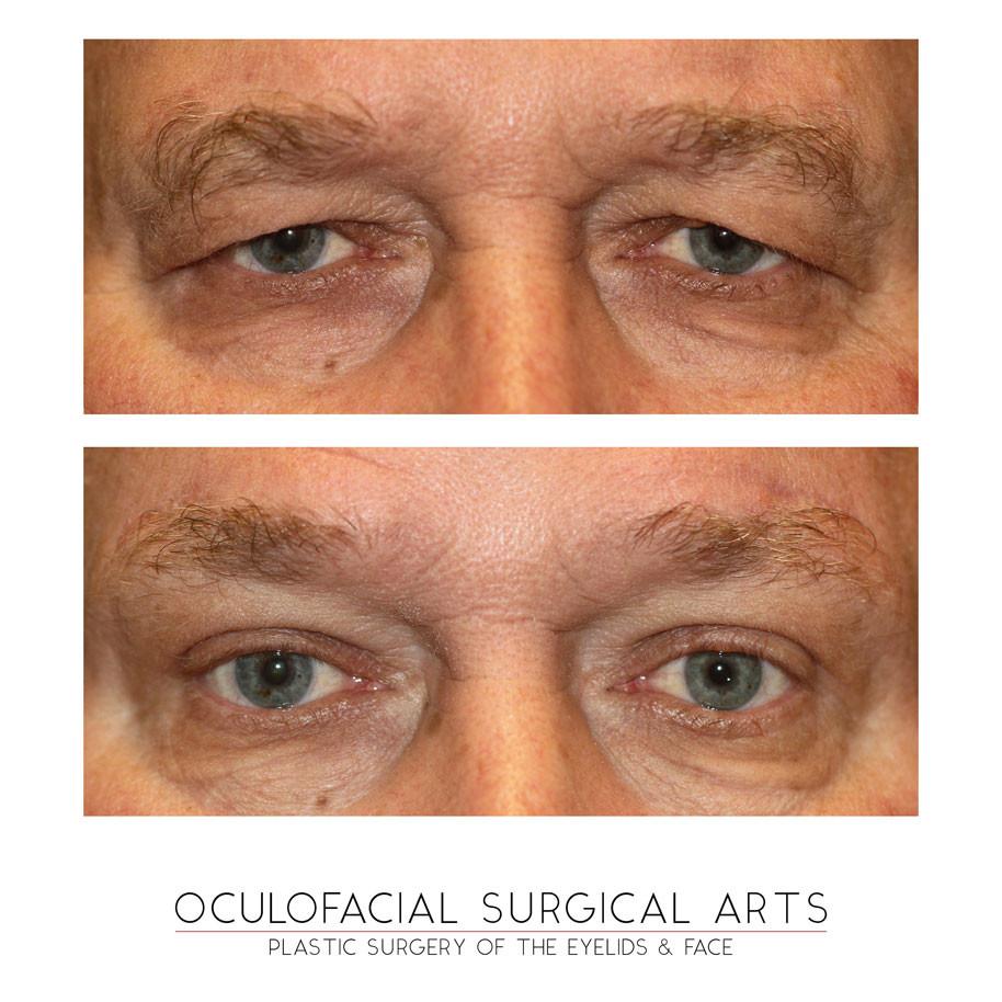 Upper Eyelid Blepharoplasty - Brow Lift