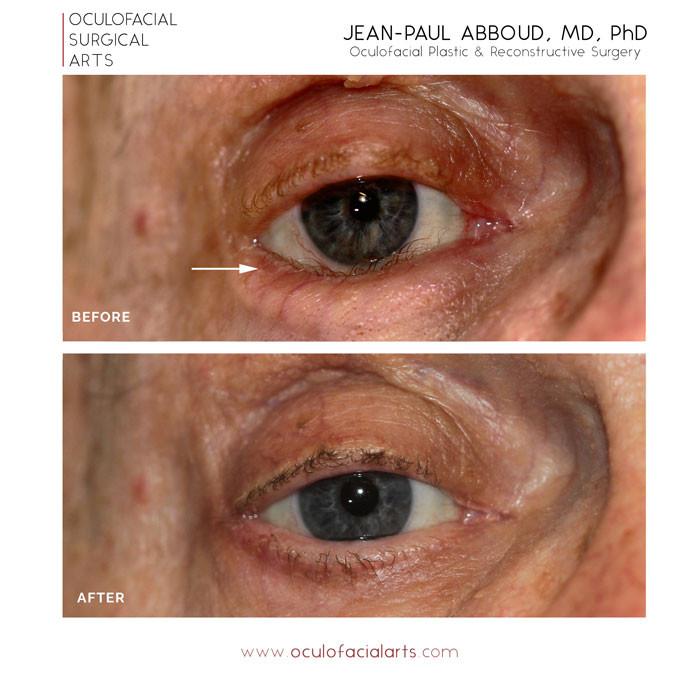 Eyelid Entropion Repair