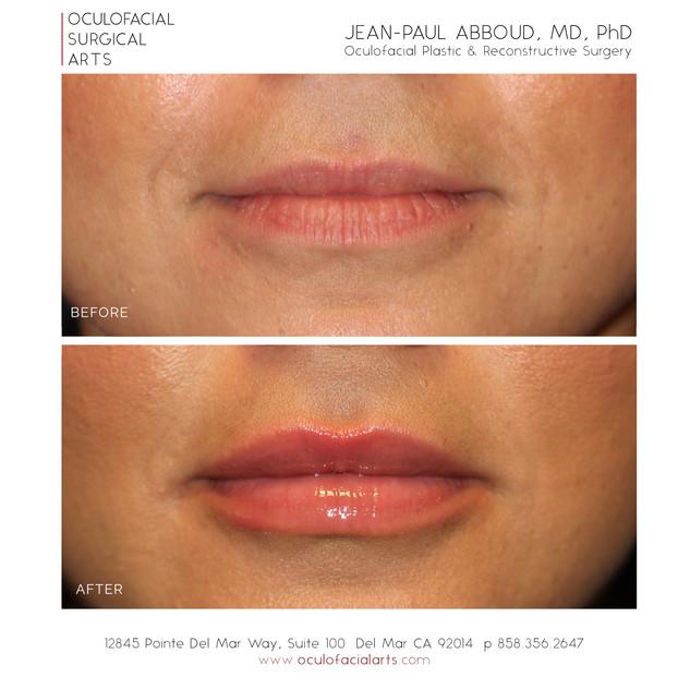 Dermal Fillers to Lips & Perioral Rejuvenation