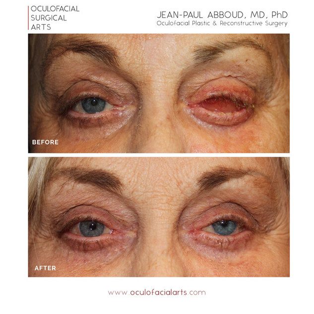 Evisceration (Eye Removal)