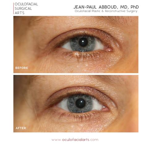 Eyelid Margin Lesion at Lash Line