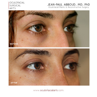 Lower Eyelid Blepharoplasty with Fat Repositioning