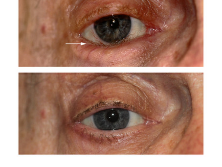 What is an Eyelid Entropion?
