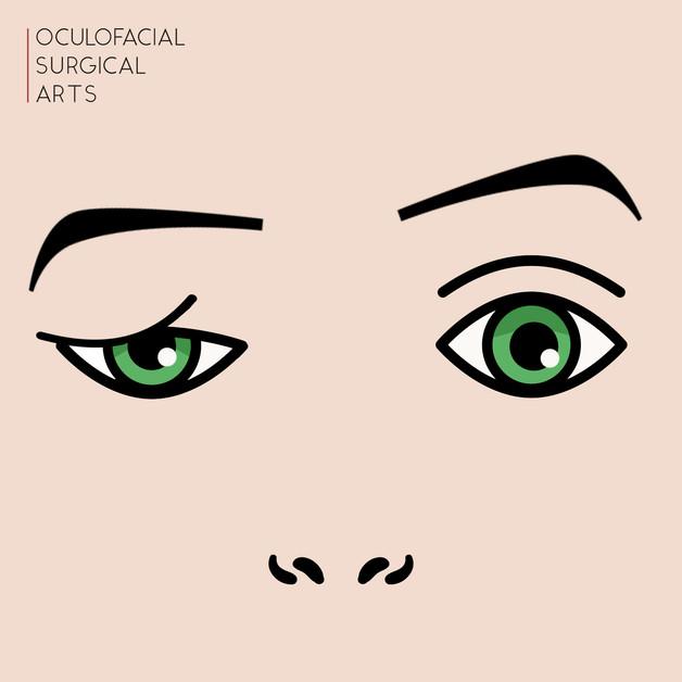 Multifactorial Eyelid Droop