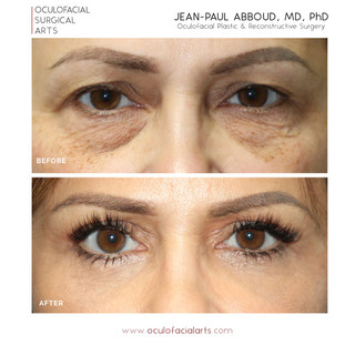 Upper & Lower Blepharoplasty with Fat Repositioning; Temporal Brow Lift