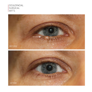 Eyelid Lesion - Lash Line