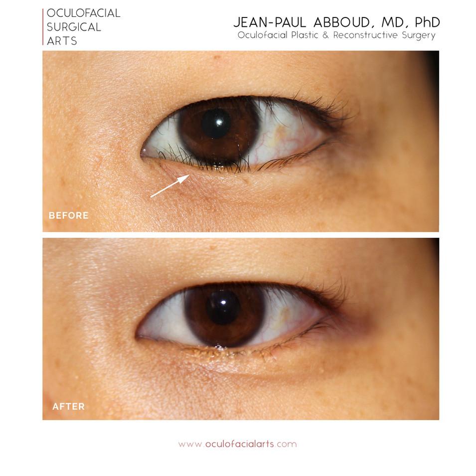 Lower Eyelid Epiblepharon Repair