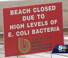 39949554-img-e-coli-causes-vermont-beach