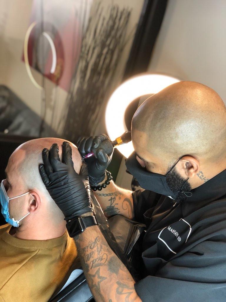 Micropigmentation for alopecia men