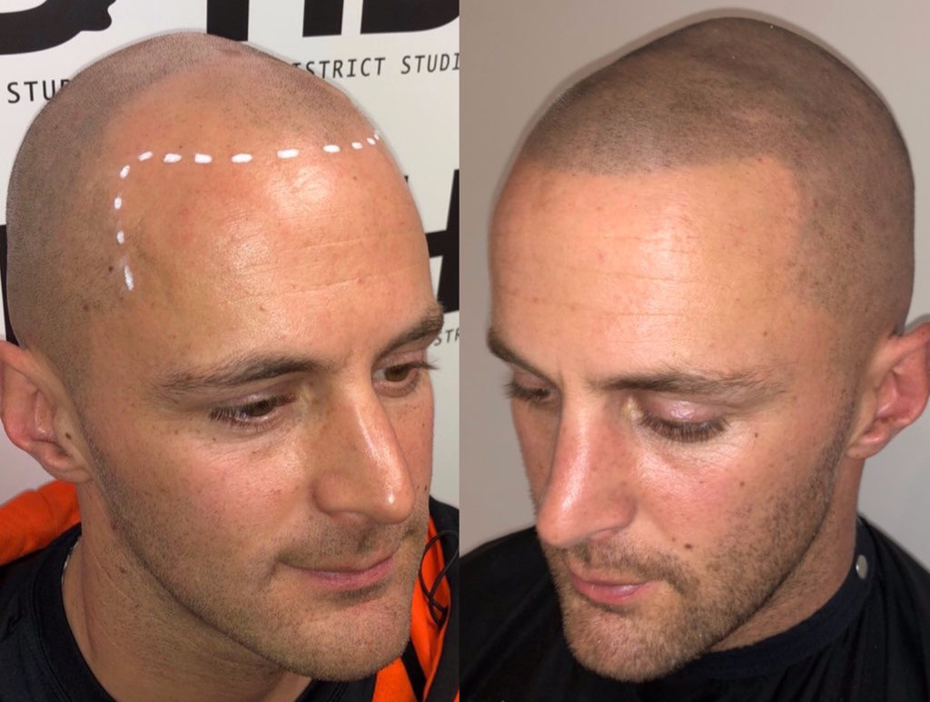 Solution for hair loss