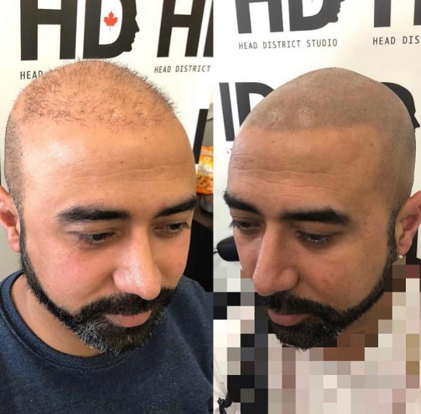Micopigmentation pour pelade