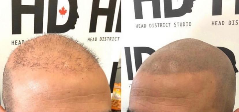 Micropigmentation pour perte cheveux