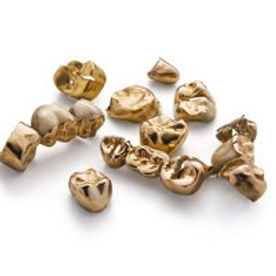 Achat d'or - achat d'or services - achat d'or 77 - achat d'or seine et marne - achat d'or marne la vallée - achat d'or paris est - achat d'or france - achat vente d'or - achat de bijoux - achat vieux bijoux - achat vieil or - achat débris d'or - achat bijoux en morceaux - acheter des bijoux - vendre des bijoux - vente de bijoux - vendre des bijoux - vendez vos bijoux - vendre du vieil or - vendre des bijoux d'occasion - vendre des bijoux cassés - vendre des morceaux de bijoux - vendre des débris d'or - vendre des bijoux en morceau - Achat d'Or Services SARL Montévrain