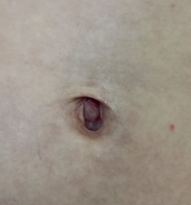 belly4-280x300.png