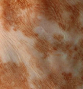 vitiligocamouflage1-300x293.jpg