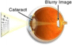 Cataract-and-Blurred-Vision.jpeg