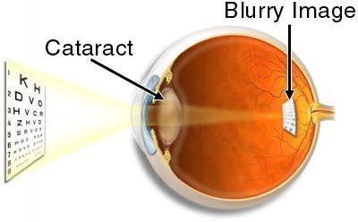 Cataract-and-Blurred-Vision.jpeg