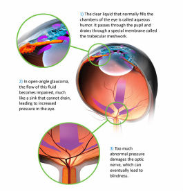 Glaucoma is treated by lowering the intraocular pressure