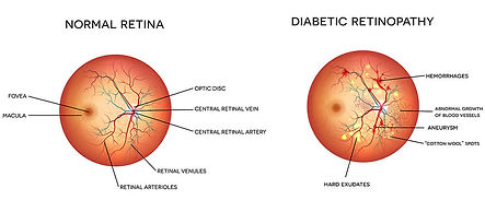 Diabetes is te leading cause of blindess in Harlem, NY