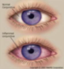 pink eye.jpg