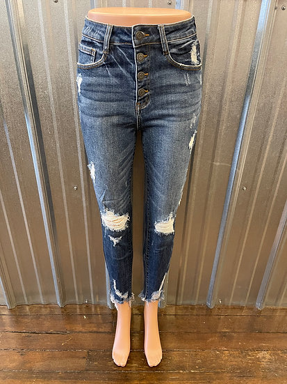 High waisted Button Fly Distressed Skinny Jean