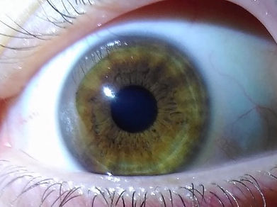 How to Tell What Your True Eye Color Is!