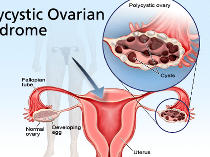 How to Heal Polycystic Ovarian Syndrome