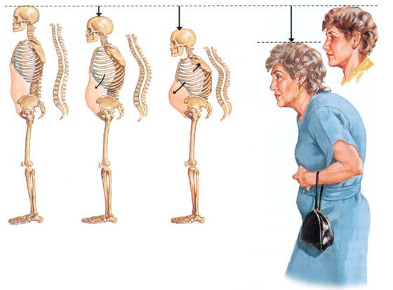 ביורזוננס - עזרה ראשונה בטיפול באוסטאופורוזיס
