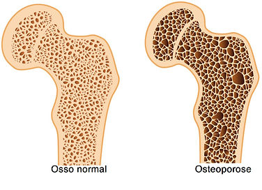 http://valejornal.com.br/perda-massa-ossea-osteoporose-tratamento/